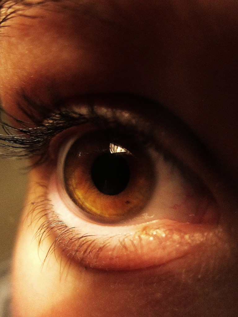 Four Things Young People Need To Know About Glaucoma My